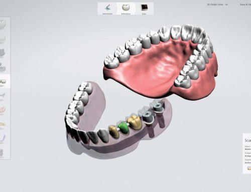 Intra orale scanner – TRIOS